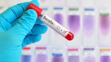 Maladie de Lyme : le nouveau scandale sanitaire